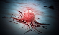 """癌细胞滚蛋吧!Nature子刊:纳米胶囊带""""弹药""""炸了中枢神经系统癌症"""