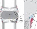 椎间盘也有干细胞修复的机制