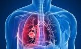 肺部小结节不等于肺癌!