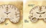 患阿尔茨海默病的风险会受肝脏、饮食的影响