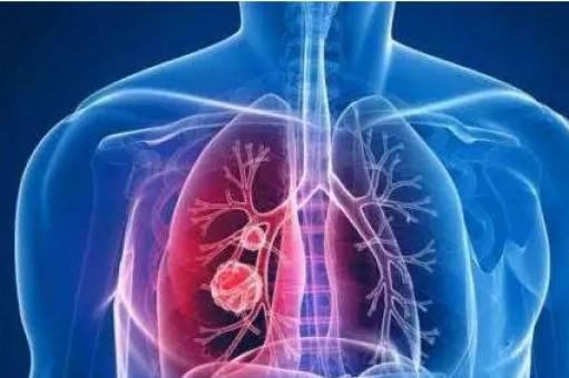 体检发现肺结节是怎么回事,肺结节是肺癌吗