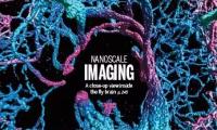 《科学》封面:纳米级清晰度看大脑是怎样一种体验?