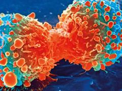 一种CAR-T疗法,对抗多种儿童肿瘤