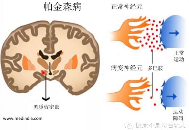 帕金森病病理特征示意图多巴胺神经元死亡的原因和机制还在研究当中图片