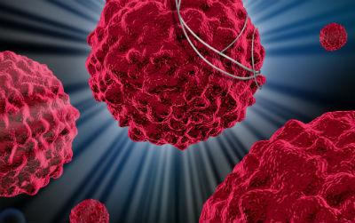 Cell:新免疫疗法可治疗多种癌症,临床试验初步成功