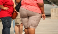 意外!Nature:全球肥胖增长的主力军竟在农村