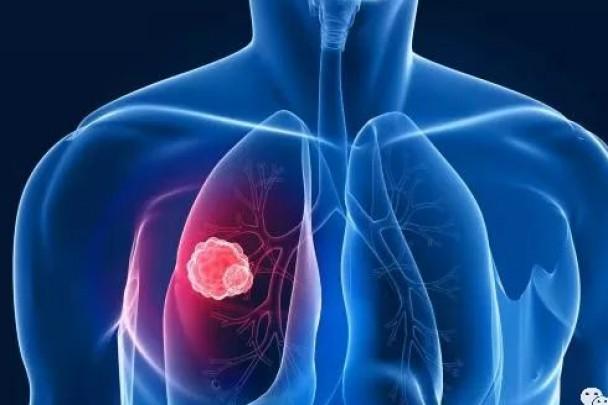 肺腑之言:发现肺结节后该这么做!