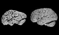 提早6年!AI诊断出老年痴呆的效率远超人类