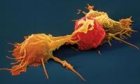 Nature子刊:北京大學尹玉新團隊揭示腫瘤免疫逃逸新機制