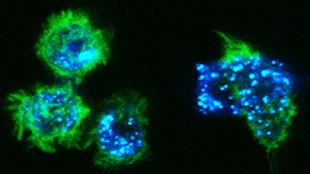 Science:皮肤的朗格汉斯细胞可致癌