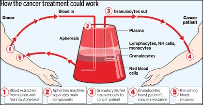 华裔科学家研究新型免疫疗法有望两年内攻克癌症