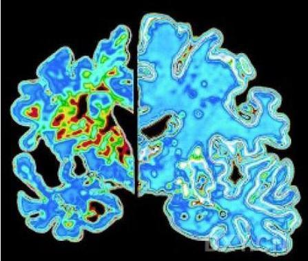 Science:癌症药物蓓萨罗丁可以逆转小鼠阿尔兹海默病