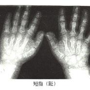 Nature:成功破解短指(趾)症致病机理
