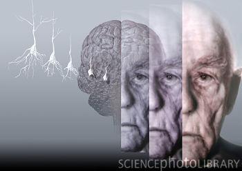 德国发明阿尔茨海默氏症检测新法