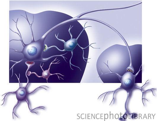 "Cell Stem Cell:张素春等证明细胞移植或可治疗""舞蹈病"""