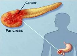 靶向治疗与中医药为胰腺癌药物研发带来新希望