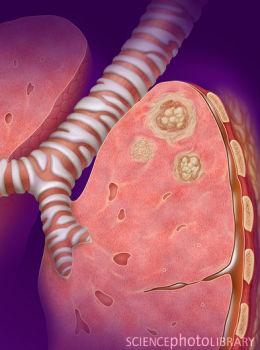 j immuno:美科学家发现肺部淋巴组织与肺疾病有关