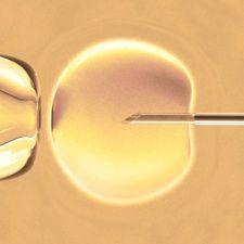 接受体外受精的女性15年后卵巢癌风险加倍
