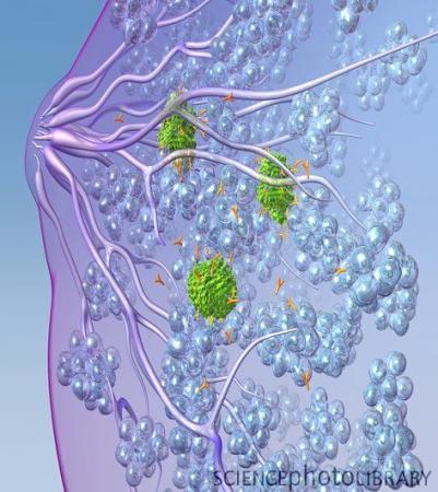 基因检测可预防乳腺癌患者化疗过程中的副作用