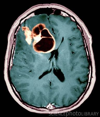 Science Daily:神经胶质瘤的基因疗法是安全的