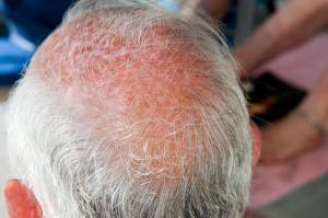 Science:头发为什么变白? Wnt 信号途径直击谜底