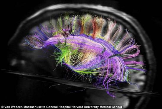 灵长类动物的脑神经呈十字交叉似高速路