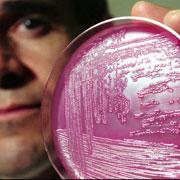 细菌也能玩自拍:大肠杆菌终于原形毕露