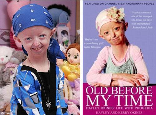 14岁早衰症少女面如老妇 身体年龄达105岁