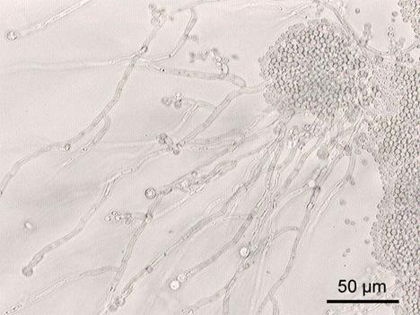 白色念珠菌风险大 研究揪出其弱点
