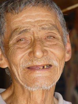 Science:新的长寿基因HST2被发现