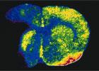 Nat. Gene.:HDAC9基因突变致中风风险倍增