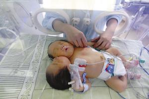 坚持150天后夭折 重庆双头女婴已创世界纪录