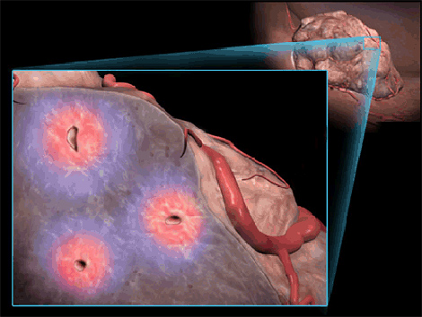 可植入肿瘤的微型氧气发生器在美国研制成功