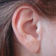 """3月3日""""爱耳日""""主题:正确使用助听器"""