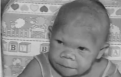 巴西30岁女子智商外貌似9岁婴儿 甲状腺激素惹的祸