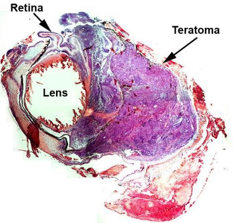 利用取自皮肤的干细胞可使断面的视网膜再生