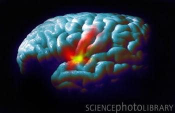 Neurology:富含类黄酮食品或有助降低男性患帕金森氏症风险