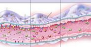 NEJM:肾小球血栓性微血管病的成因研究