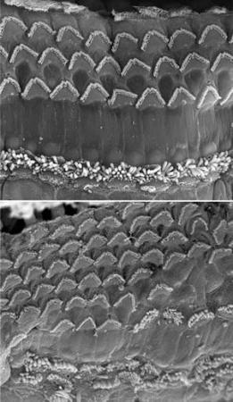 Nature:通过再生关键听觉细胞修复听力损失