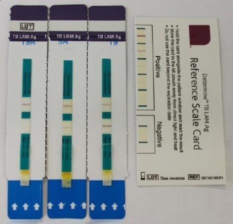 柳叶刀传染病:科学家开发出诊断与HIV共感染的结核分歧杆菌试纸