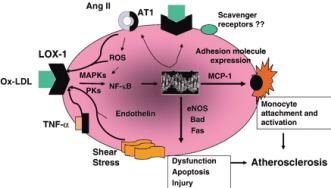动脉粥样硬化预防与治疗中应重视抗炎治疗